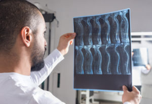 spinal cord injury lawyer fort lauderdale